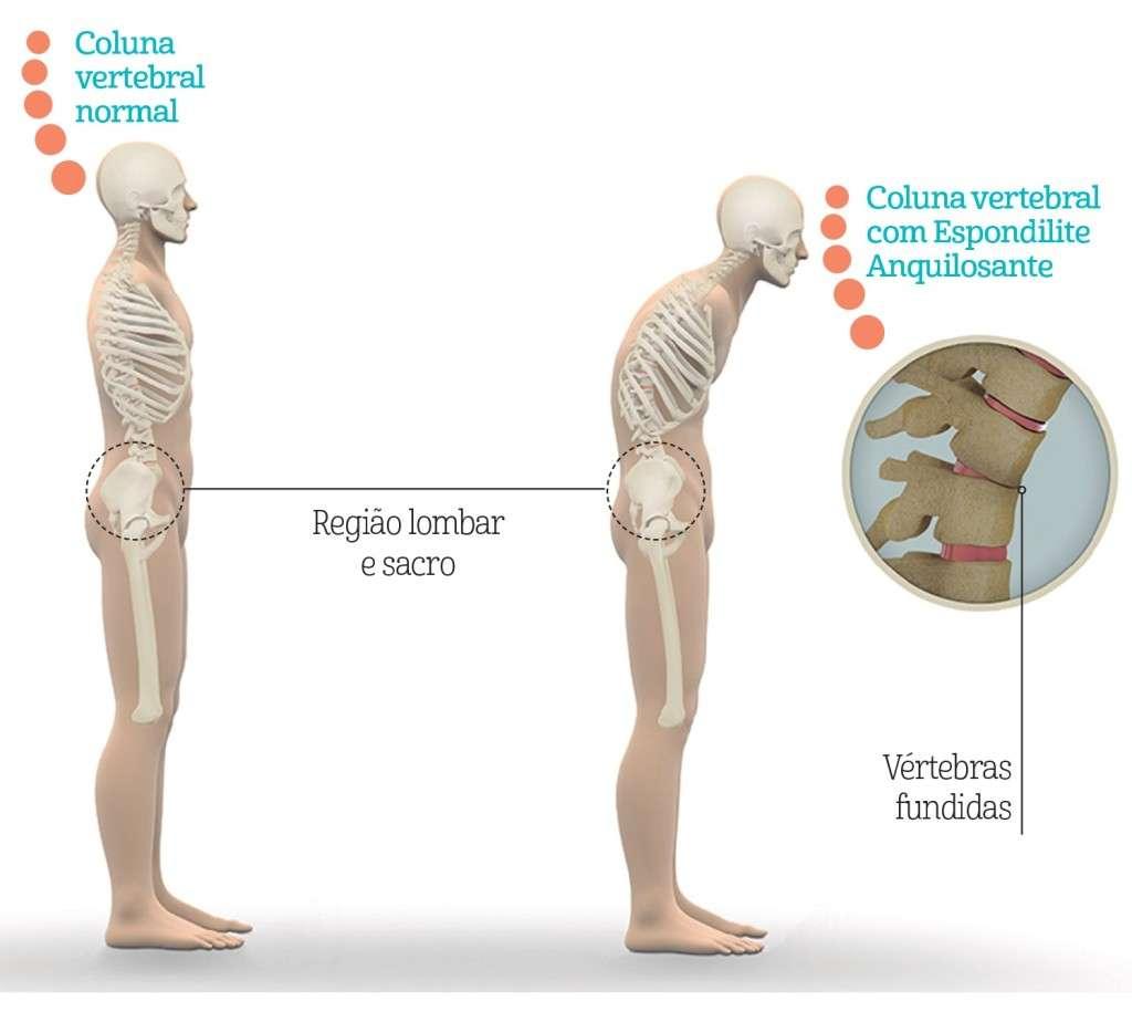 Coluna saudável e coluna com Espondilite Anquilosante