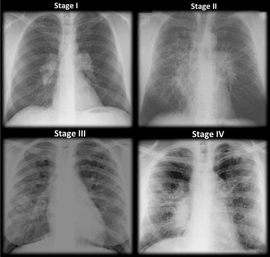 Estágios da sarcoidose com base em radiografias de tórax