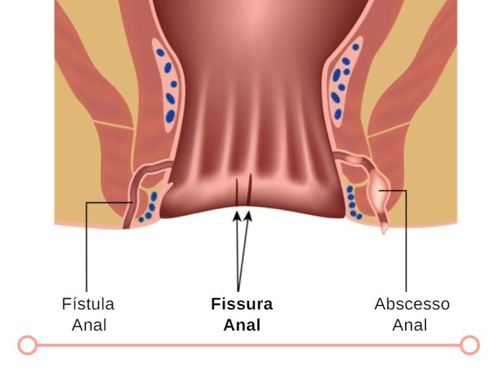 Localização Da Fissura Anal