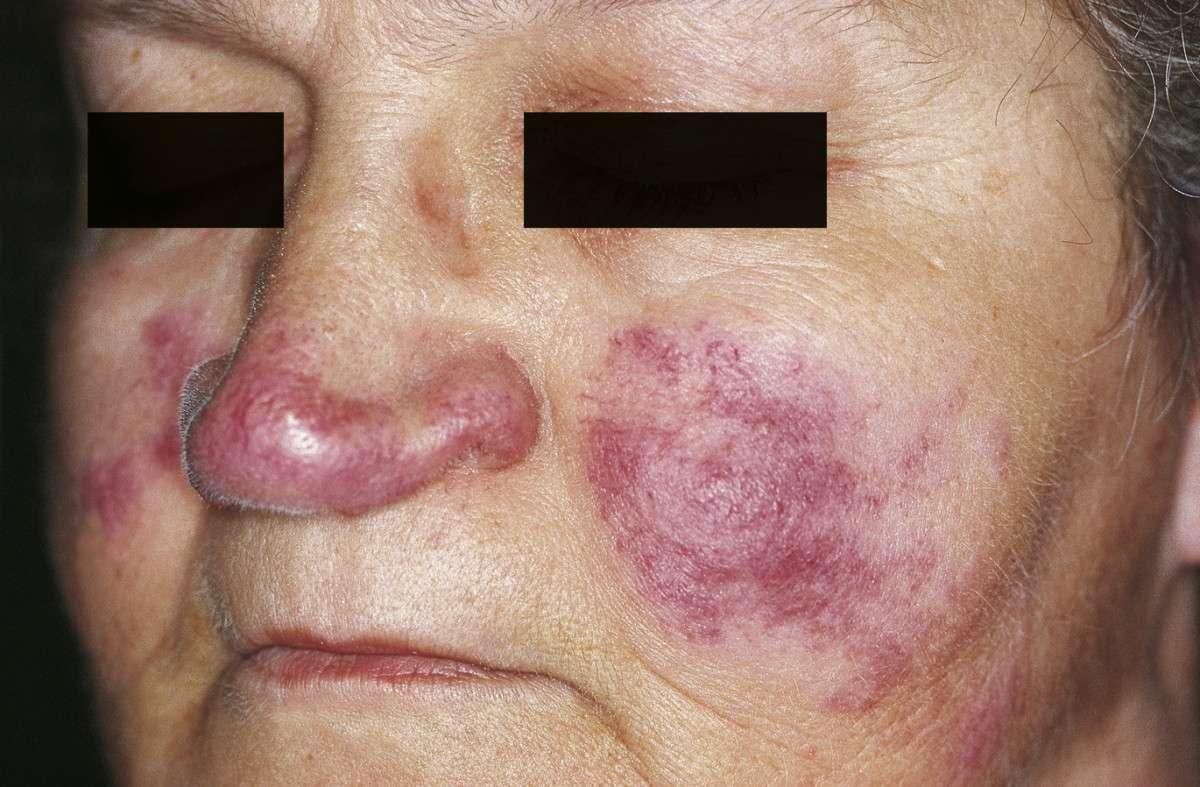 Lupus pérnio