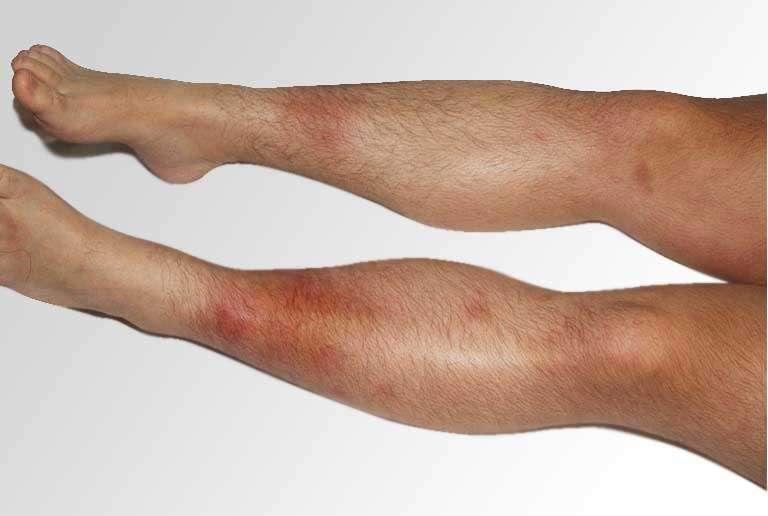 Síndrome de Lofgren tem como sintoma eritemo nodoso e artrite