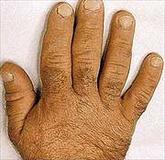 mãos grandes e grossas 6