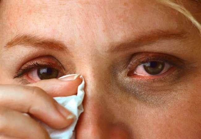 ardor nos olhos, coceira nos olhos, olhos dolorosos, sensibilidade à luz e lacrimejamento