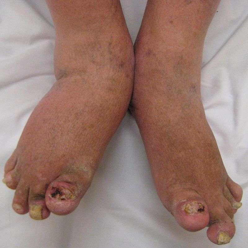 Fotos de artrite psoriática