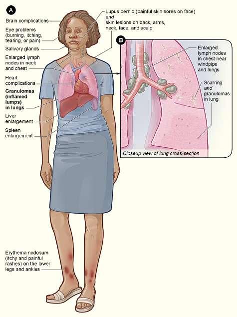 sintomas de sarcoidose