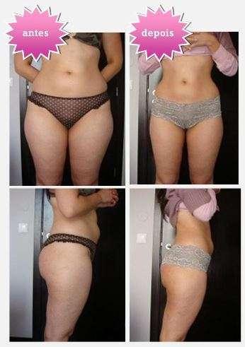antes e depois da cavitação