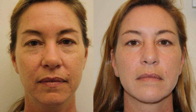 Ácido Polilático (Sculptra): Reafirmante Corporal e Facial Anti flacidez