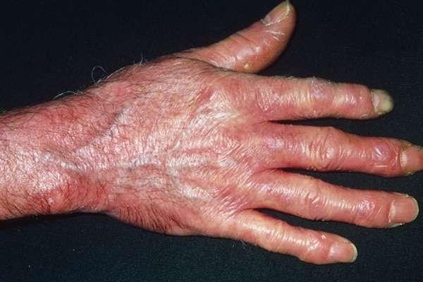 esclerodermia na mão