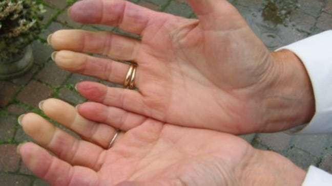 foto-dos-efeitos-da-esclerodermia-em-maos