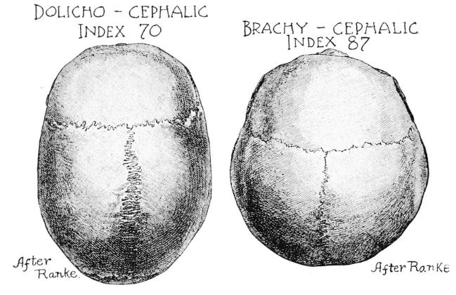 Malformações cefálicas congênitas
