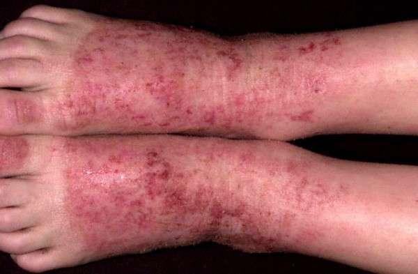 Eczema Atópico