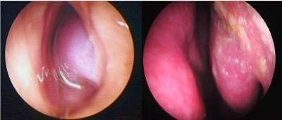corneto nasal inflamado, hipertrófico