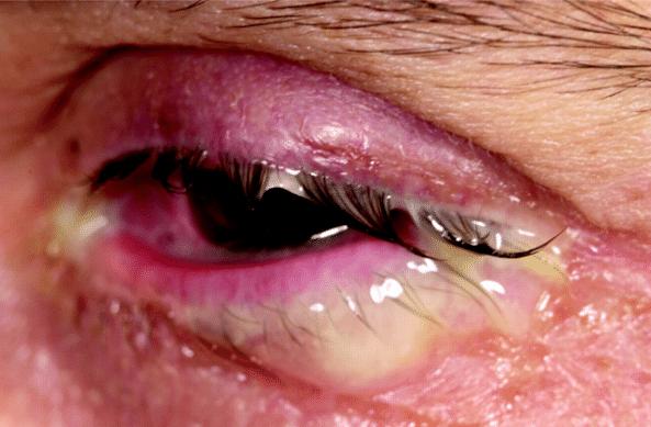 Conjuntivite é uma doença ocular irritante