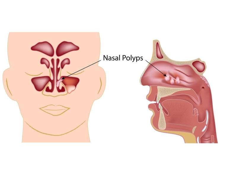 pólipos nasais