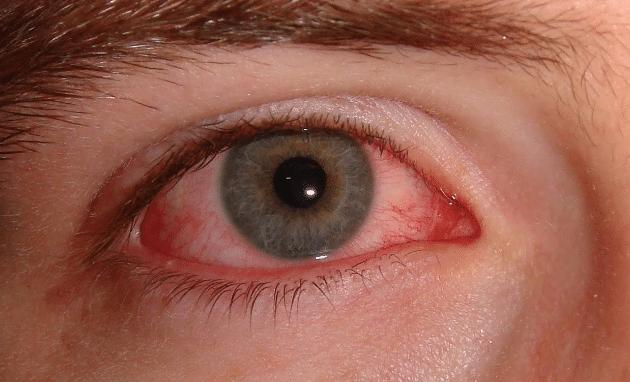 vermelhidão e coceira nos olhos causada pela conjuntivite