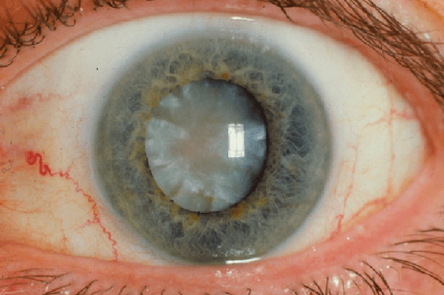 Cirurgia De Catarata. Visão Embaçada, Brilho E Má Visão Noturna São Sintomas Típicos De Catarata.