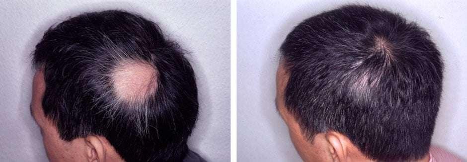 Fotos de alopecia areata antes e depois