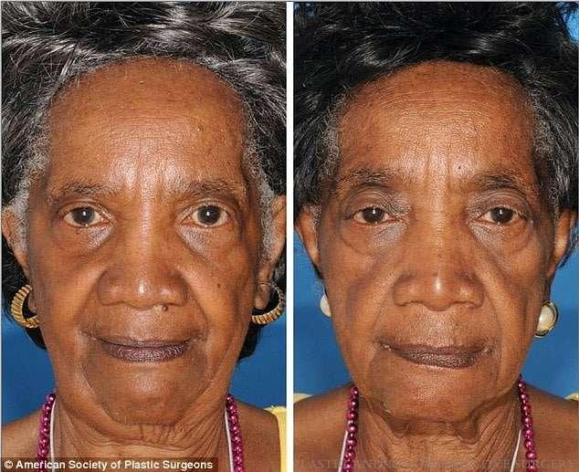 antes e depois fumar