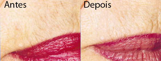 Depilação Definitiva – Eliminar os Pelos Definitivamente