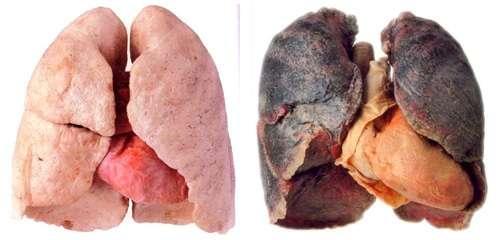 pulmão antes e depois de fumar