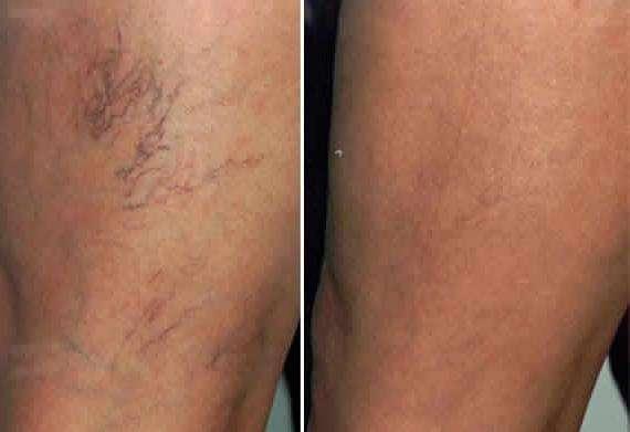 Escleroterapia antes e depois 2