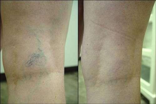 Escleroterapia fotos antes e depois
