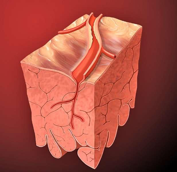 Como prevenir a Aterosclerose