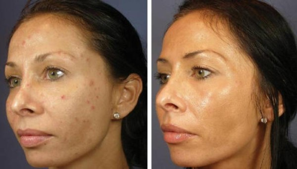 Peeling Suave, indicado para remover cicatrizes da acne e manchas