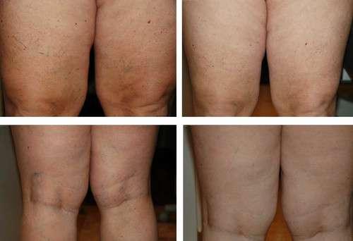 Escleroterapia a laser