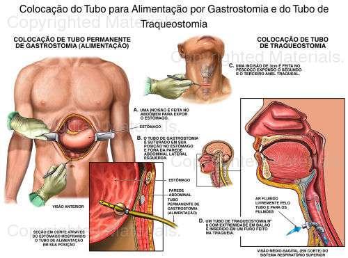 Alimentação por Gastrostomia percutânea endoscópica (PEG)