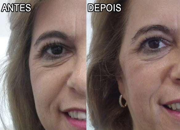 linhas de expressão antes e depois