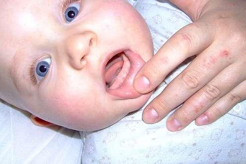 Conheça melhor a Boca do seu Bebê