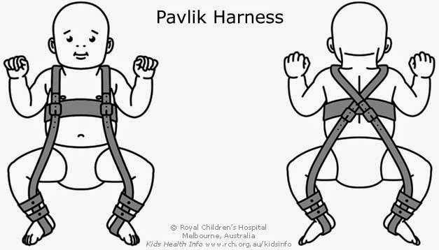 Aparelho que serve para tratar a luxação congénita da anca