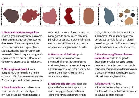 Tipos de manchas e sinais de nascença
