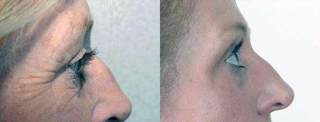 peeling quimico antes e depois 3