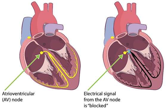This illustration compares electricity flow in a patient with a normal heart to the electricity flow in patient infected with Lyme disease who is experiencing third degree heart block.