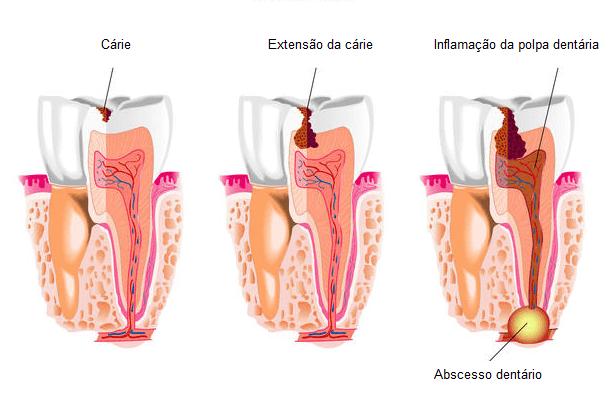 Cárie dentária é uma das causas de abscesso dentário