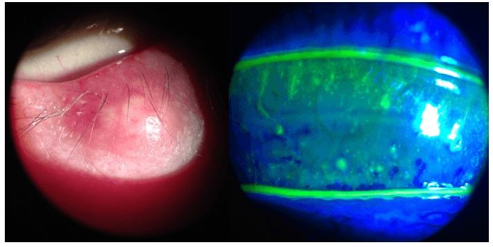 Calázio no olho esquerdo de uma paciente com blefarite (á esquerda) e queratite filamentosa de um paciente com olho seco e blefarite (á direita).