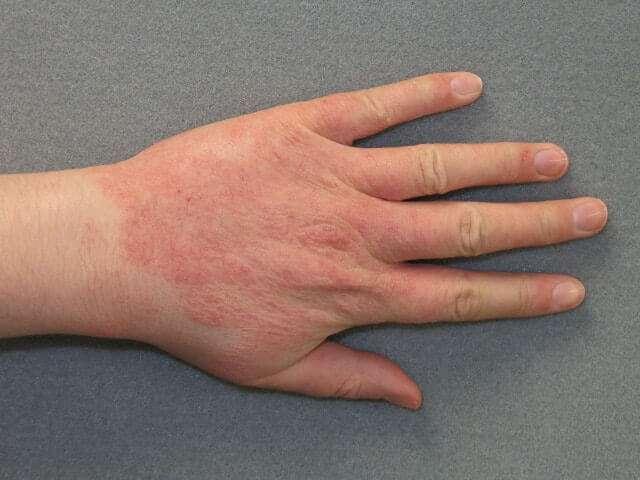 Dermatite de contato alérgica nas mãos