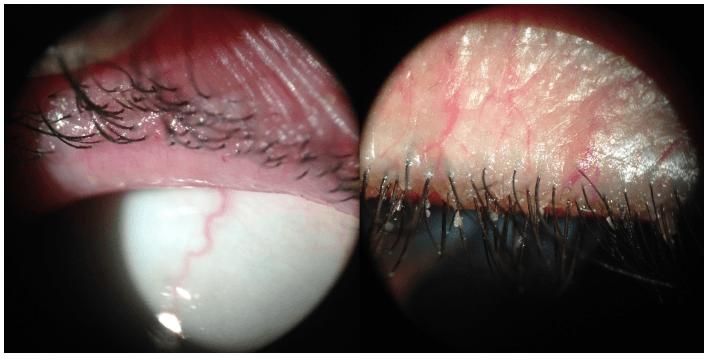 Imagem, Paciente com blefarite anterior e posterior em ambos os olhos