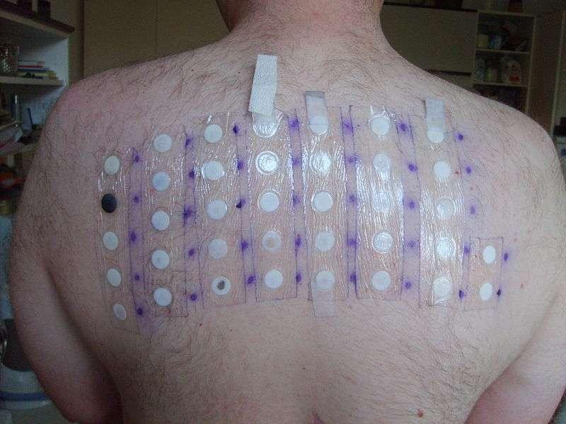 Patch test no diagnóstico de dermatites de contato