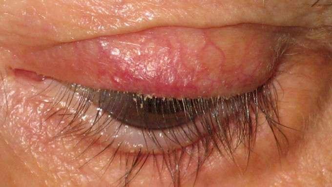 a blefarite causa inchaço nas pálpebras