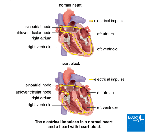 bloqueio do coração