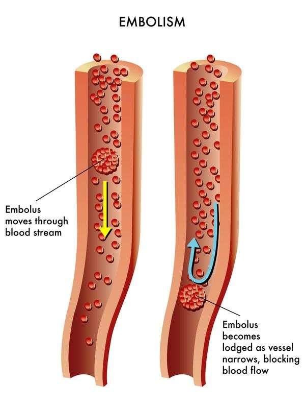Embolia: Conheça 8 Causas, 9 Sintomas, 3 Tratamentos, Prevenção e 10 Fatores de Risco