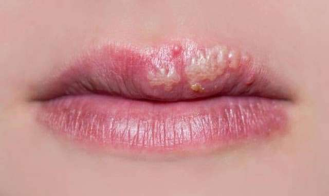 herpes-labial