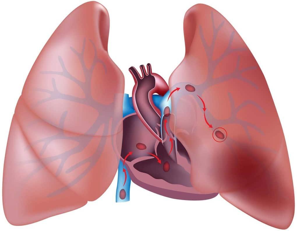 imagem de embolia pulmonar