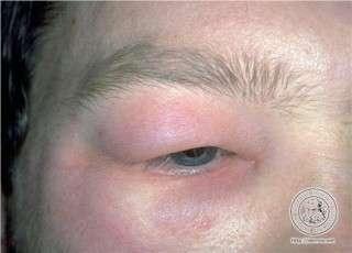 Angioedema (edema angioneurótico, edema de Quincke)