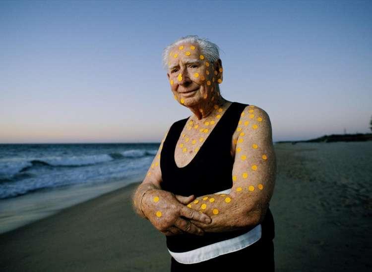 Cancro de Pele Melanoma (melanoma cutâneo)