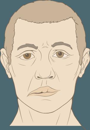 Paralisia de Bell (paralisia de um dos lados da face)