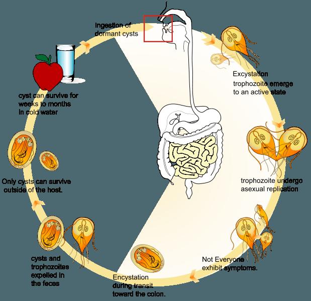 Giardíase (infecção intestinal pelo parasita Giardia lamblia)